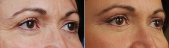 revision upper blepharoplasty-temporal brow lift
