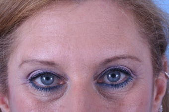 Endoscopic browlift, upper and lower blepharoplasty (eyelids)