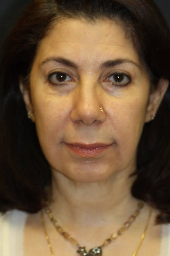 Chin Augmentation with upper/lower blepharoplasty, facelift, radiesse, and buccal fat removal
