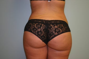 Buttock Augmentation (Fat Transfer)