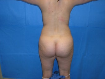 Buttock augmentation by fat transfer