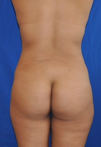Buttock Augmentation using Fat Transfer