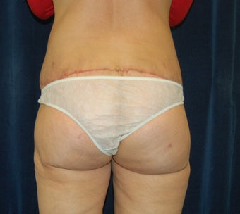 Bi-lateral thigh and buttocks lift with fat transfer