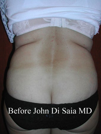 Butt Lift in a prior Tummy Tuck Patient