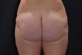 Buttock Augmentation through Fat Transfer