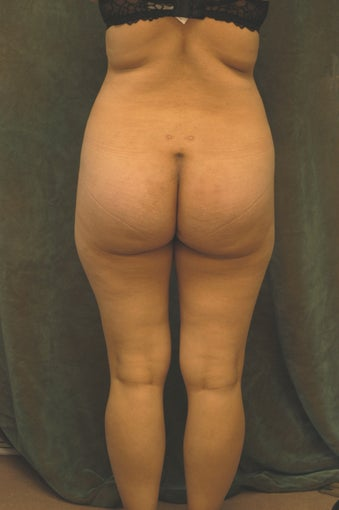Women's Buttocks Augmentation