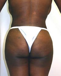 Liposuction and Buttock augmentation