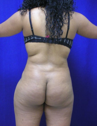 Buttock Augmentation - Fat Transfer