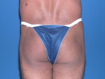 Buttock augmentation with implant