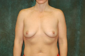 Women's Breast Augmentation: Enlarge and Minilift