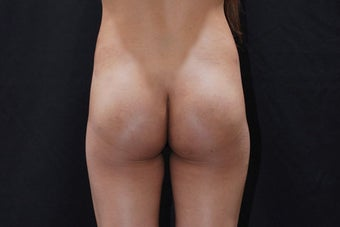 Buttock Augmentation with Gluteal Implant