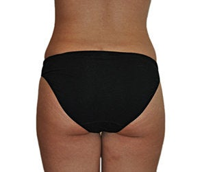 Butt Augmentation (Implants)