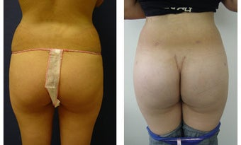 Buttocks Implants