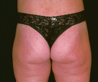 Buttock and flank lift for massive weight loss