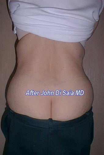 Butt Lift Years Following Tummy Tuck