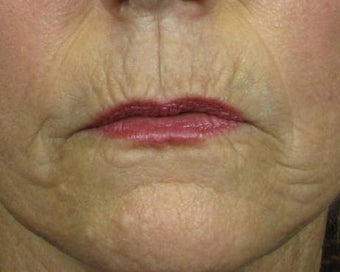 Ridding Lip Lines & Wrinkles with C02 Laser