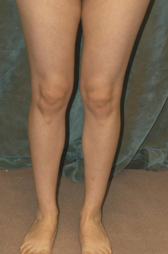 Women's Calf Augmentation