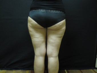 Cellulaze - Cellulite Treatment