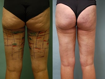 Cellulaze anti-cellulite treatment of buttocks and thighs