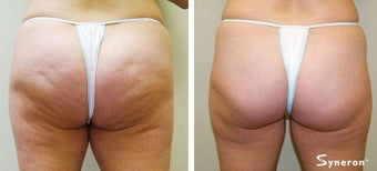 Velashape, after 5 treatments
