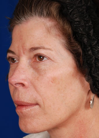 Radiesse Cheek Augmentation