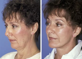 Face lift with a chin implant
