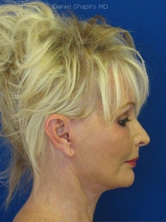 Cheeklift (minifacelift) with TCA chemical peel to the lower eyelids performed in the office under oral sedation with local anes