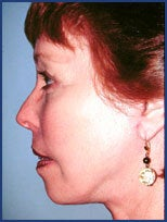 Mid facelift, lower facelift and upper blepharoplasty