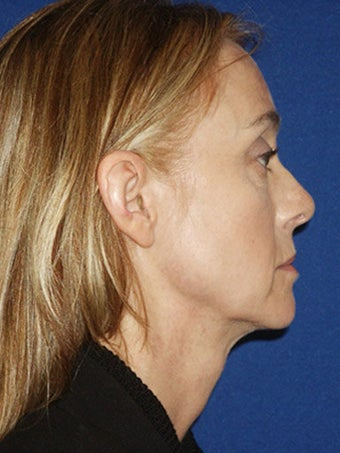Cheeklift (Minifacelift), Bilateral Upper Blepharoplasty, Periorbital TCA Chemical Peel, Soft Tissue Filler to Nasolabial Folds