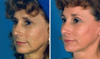 Cheek Lift and Augmentation