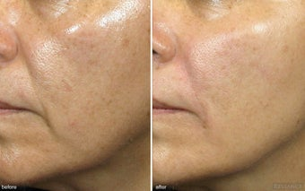 Cheek Augmentation / Cheek Lift