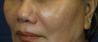 Cheek Lift / Augmentation