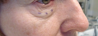 Lower eyelid and cheek lift