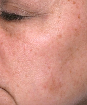 Melanage Peel to Treat Melasma and Hyperpigmentation