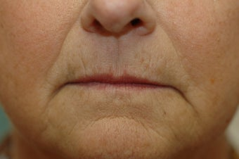 Hetter facial resurfacing