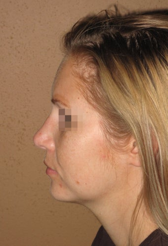 Chin enlargment and rhinoplasty combo