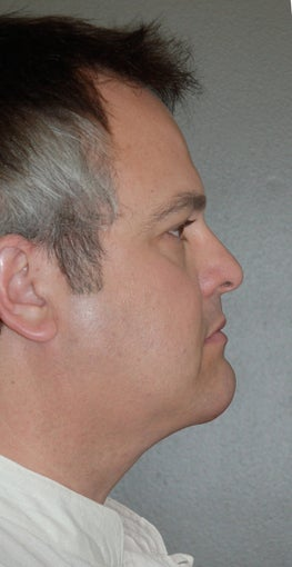 Chin Augementation
