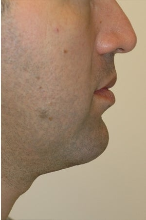 Chin augmentation, neck liposuction and neck muscle tightening.