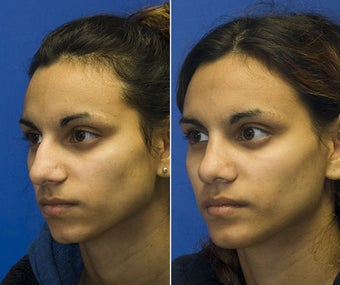 Chin Implantation with Rhinoplasty