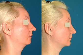 Rhinoplasty, Chin Implant, & Neck Liposution