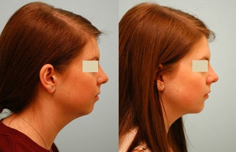 Chin Implant (Alloplastic Chin Augmentation)