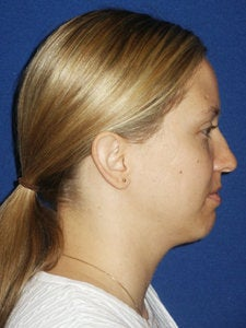 Chin implant Exchange for a more contemporary size medium chin implant and  Necklift with 15cc of VASER liposuction of the neck.