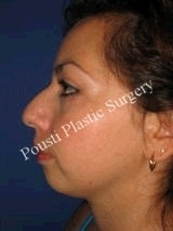 Chin Implants, Nose Surgery (Rhinoplasty)