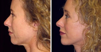 47 year old female, chin implant