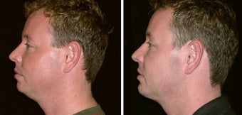 34 year old male, chin implant