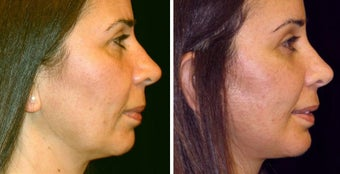 48 year old female, chin implant