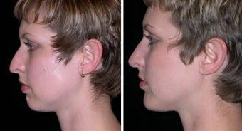 25 year old female, chin implant