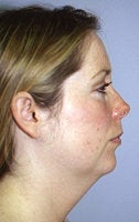 Before and After Chin Implant with Liposuction (Side View)