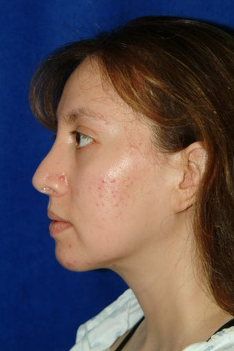 Rhinoplasty, chin implant, chin liposculpture, cheek fat pad removal