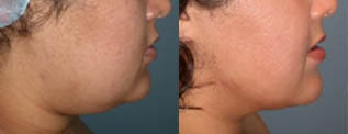 Liposuction (chin and jaw line)